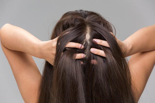円形脱毛症の女性
