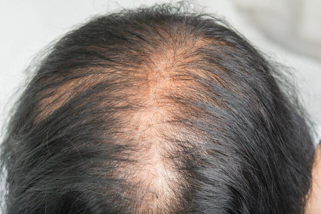 頭頂部の薄毛女性