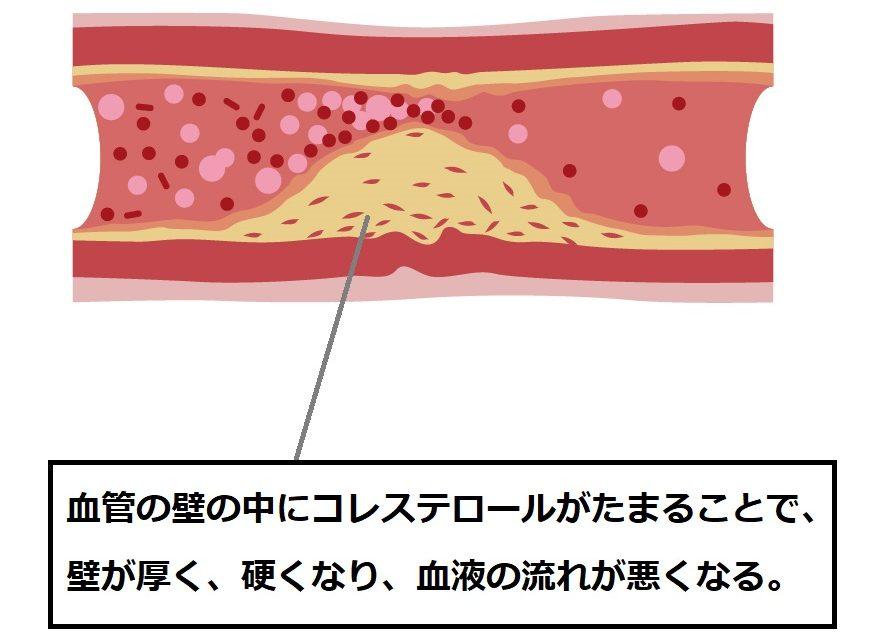 血管にたまるコレステロール